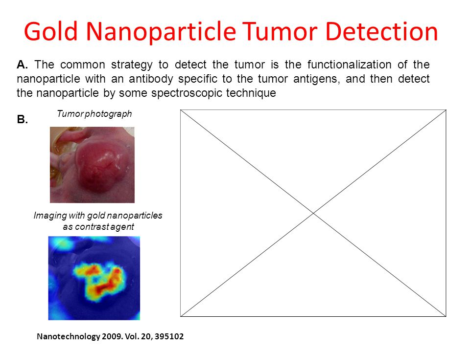 Gold Nanoparticle Tumor Detection