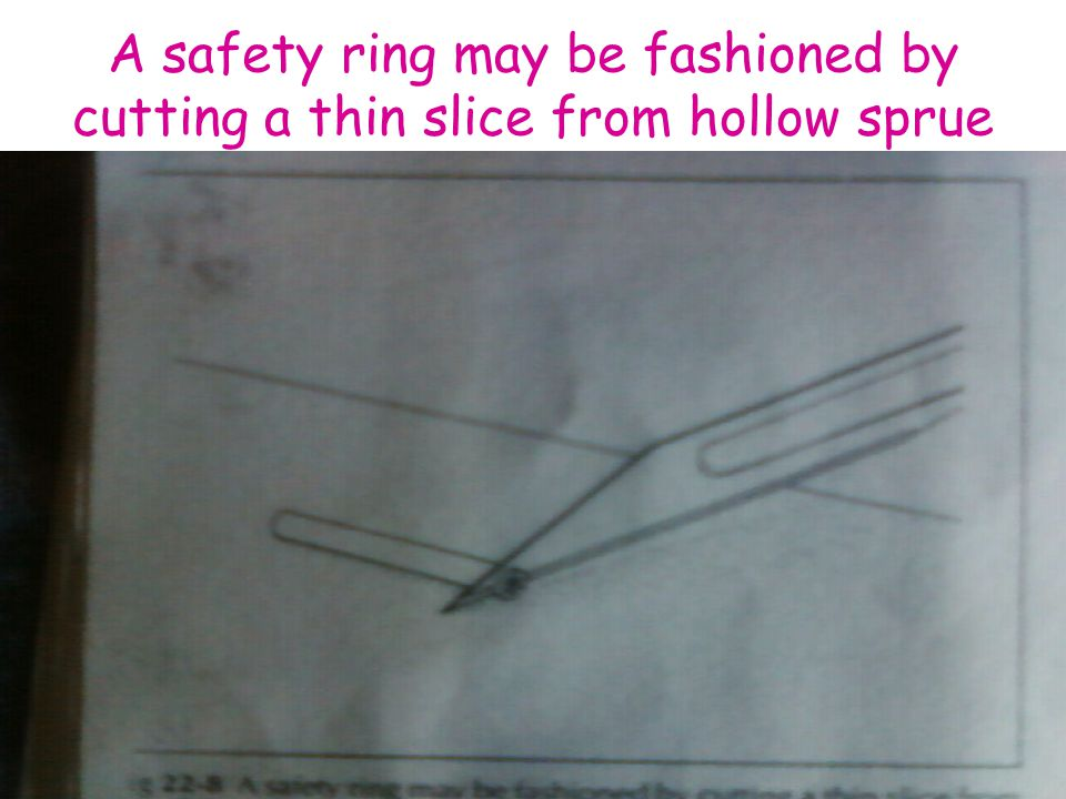 A safety ring may be fashioned by cutting a thin slice from hollow sprue