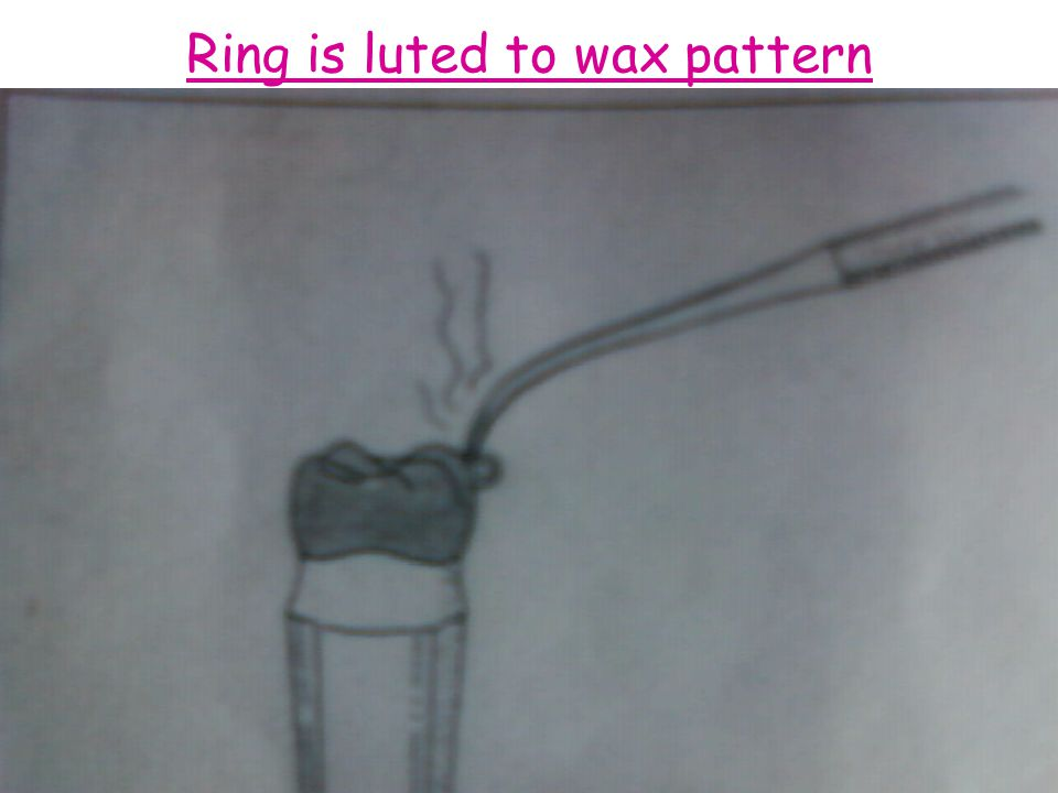 Ring is luted to wax pattern