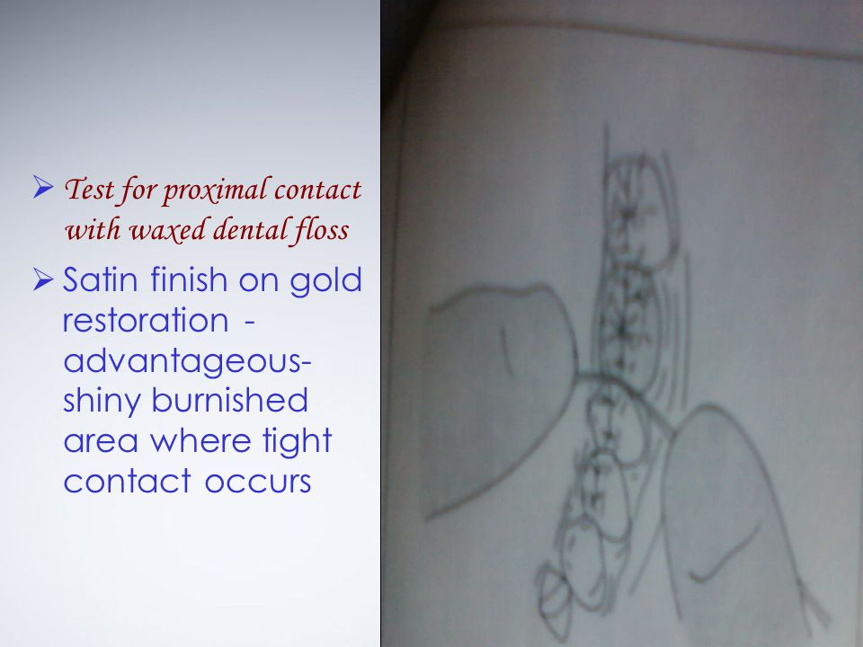 Test for proximal contact with waxed dental floss