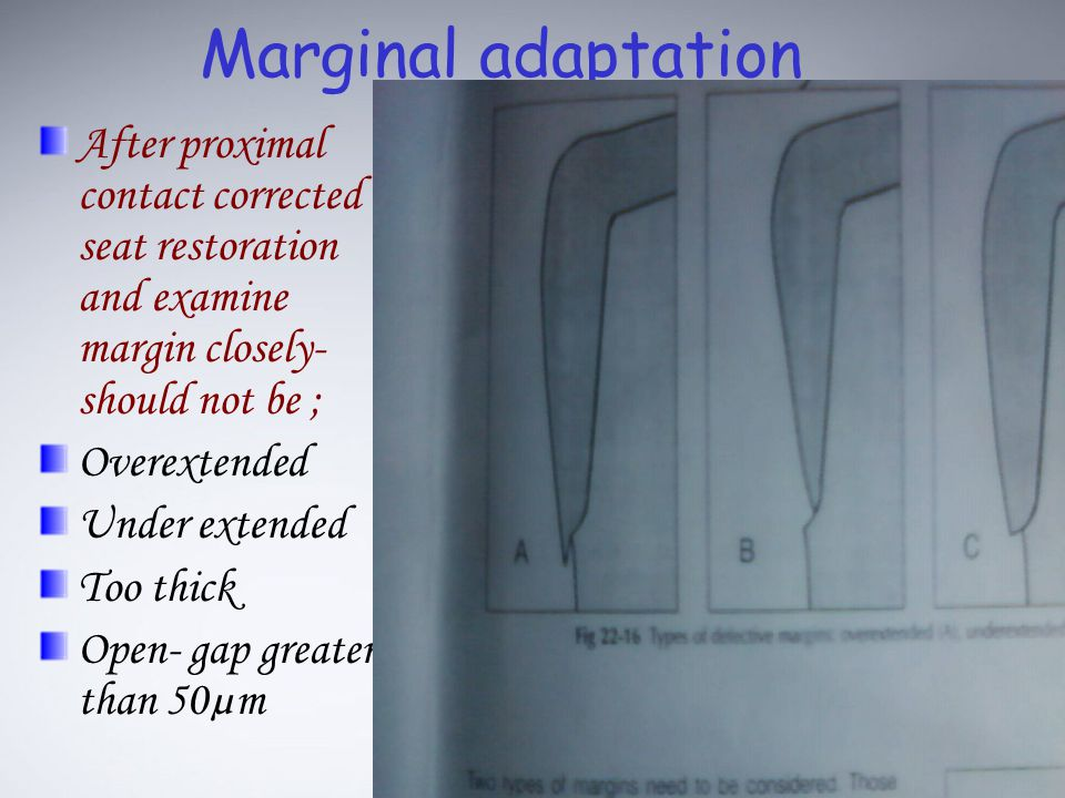 Marginal adaptation After proximal contact corrected seat restoration and examine margin closely-should not be ;