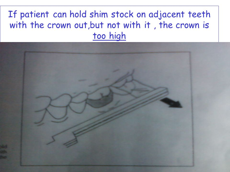 If patient can hold shim stock on adjacent teeth with the crown out,but not with it , the crown is too high