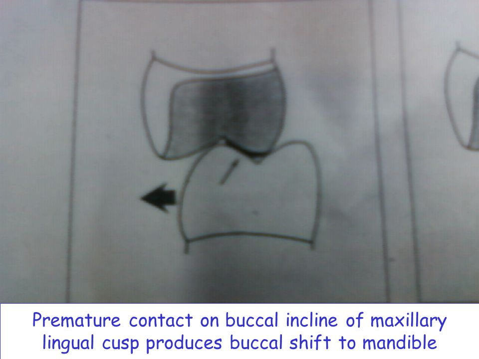Premature contact on buccal incline of maxillary lingual cusp produces buccal shift to mandible