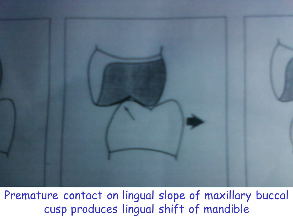 Premature contact on lingual slope of maxillary buccal cusp produces lingual shift of mandible
