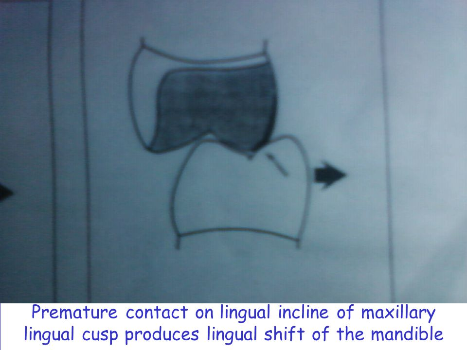 Premature contact on lingual incline of maxillary lingual cusp produces lingual shift of the mandible