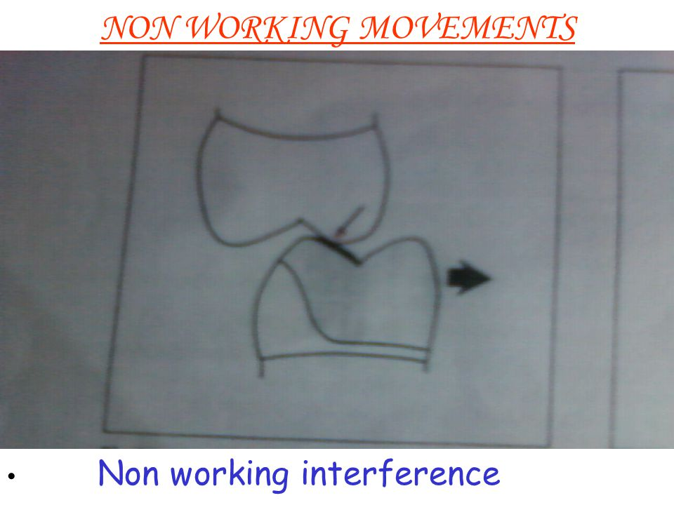 NON WORKING MOVEMENTS Non working interference