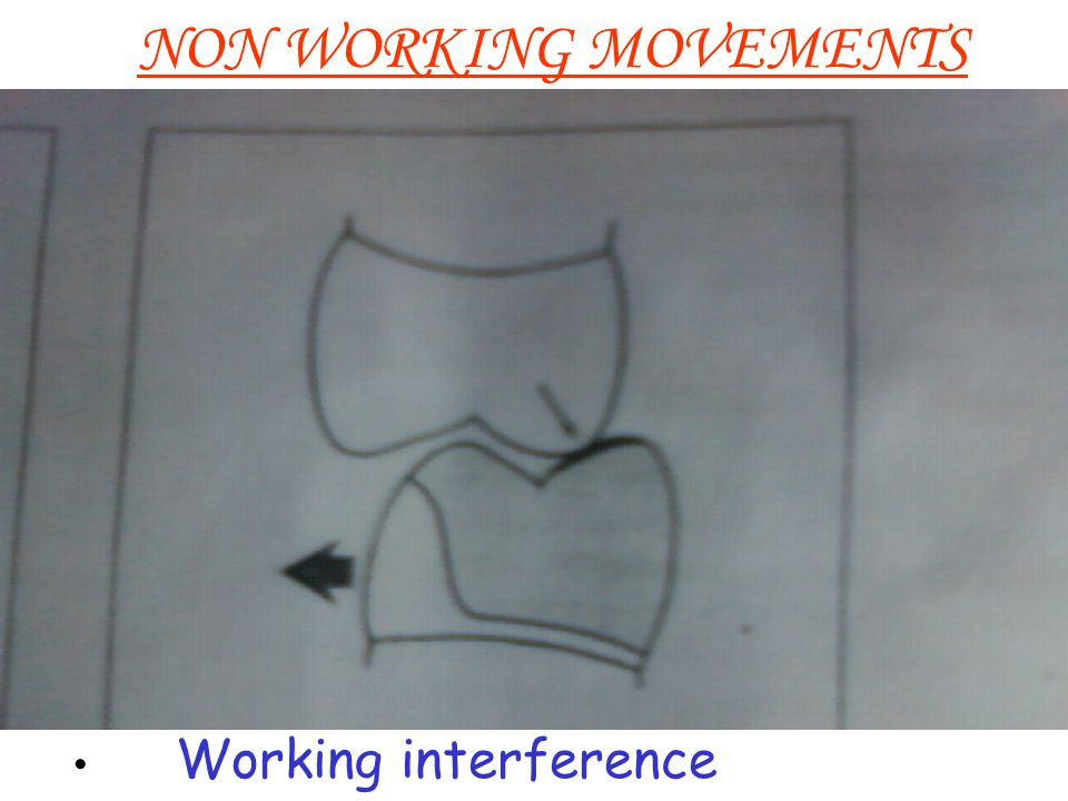 NON WORKING MOVEMENTS Working interference
