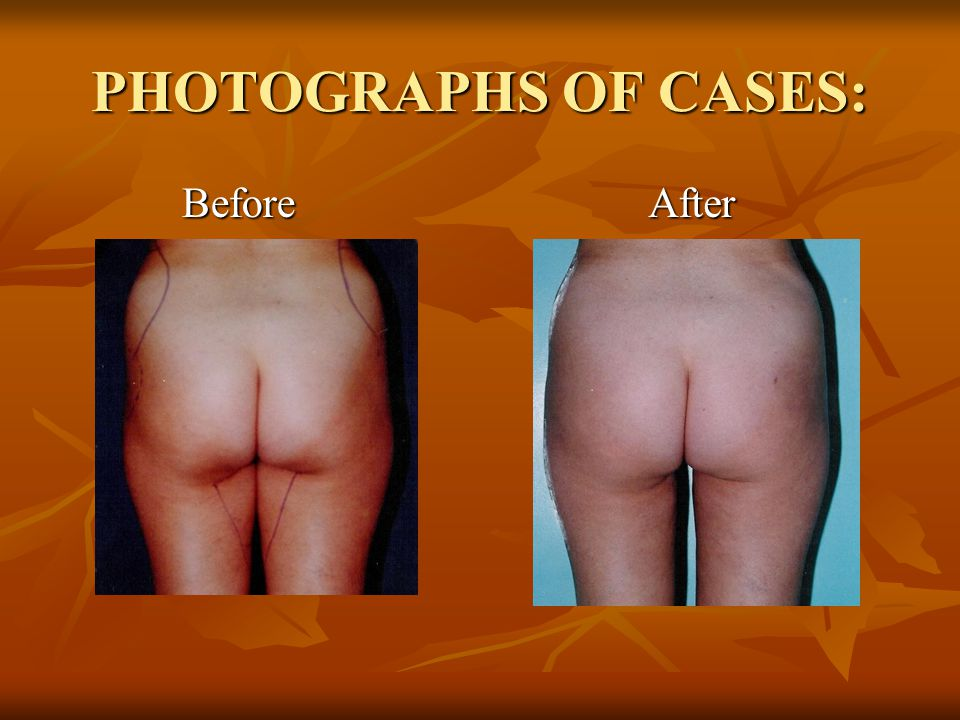 PHOTOGRAPHS OF CASES: Before After