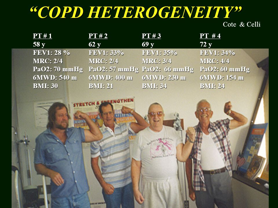 COPD HETEROGENEITY Cote & Celli PT # 1 58 y FEV1: 28 % MRC: 2/4
