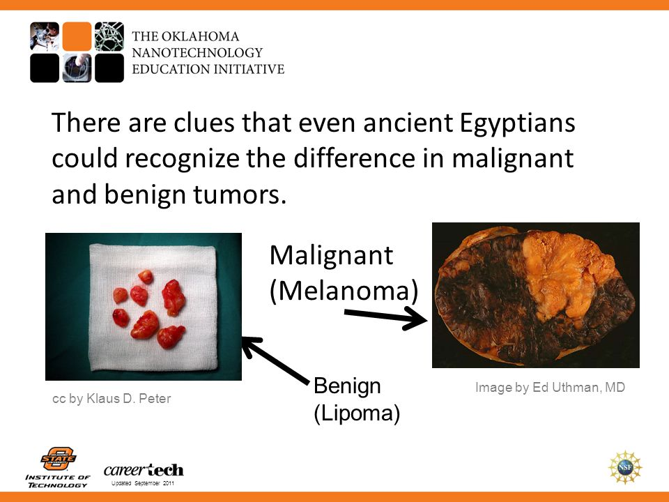 There are clues that even ancient Egyptians could recognize the difference in malignant and benign tumors.