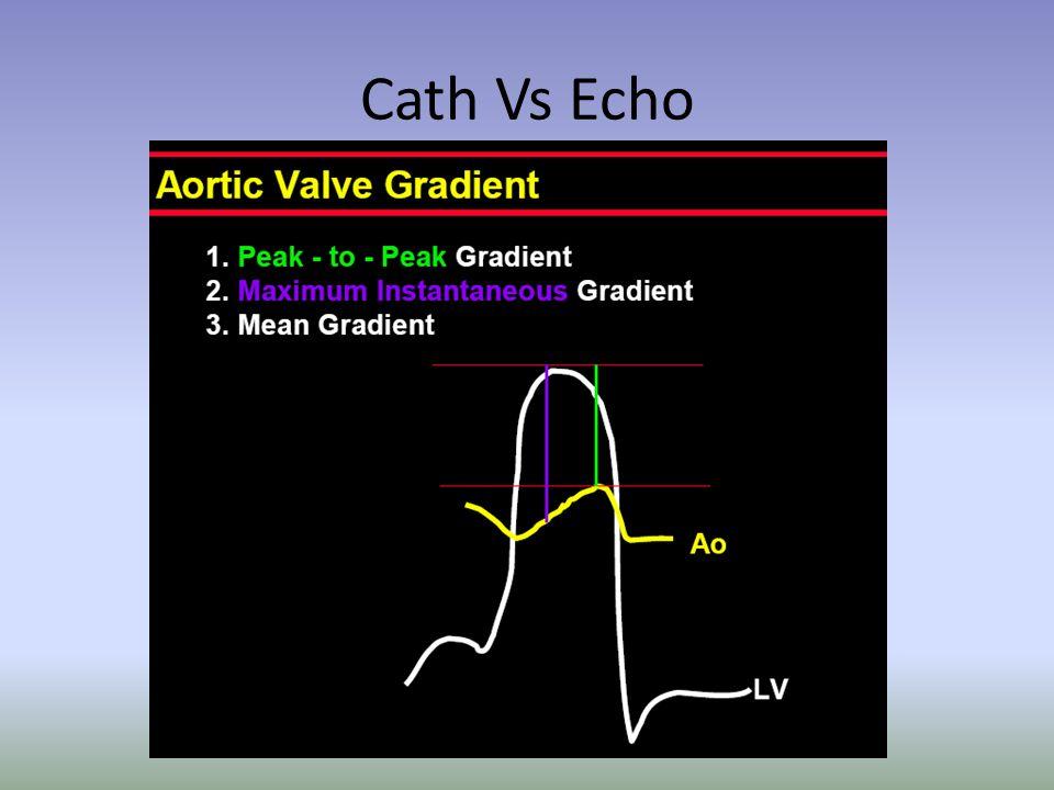 Cath Vs Echo