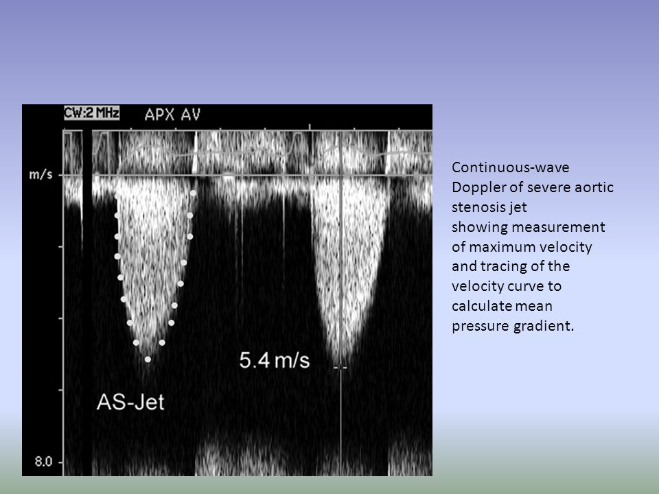 Continuous-wave Doppler of severe aortic stenosis jet
