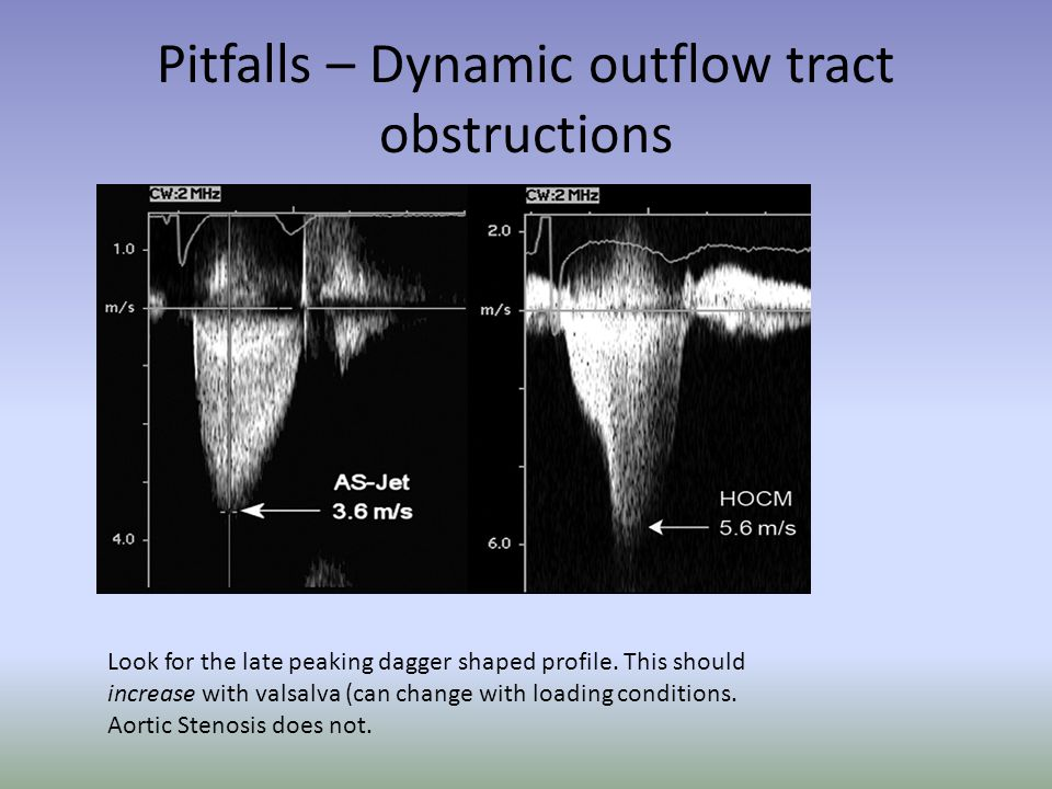 Pitfalls – Dynamic outflow tract obstructions