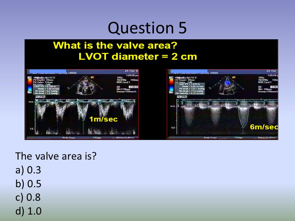 Question 5 The valve area is a) 0.3 b) 0.5 c) 0.8 d) 1.0