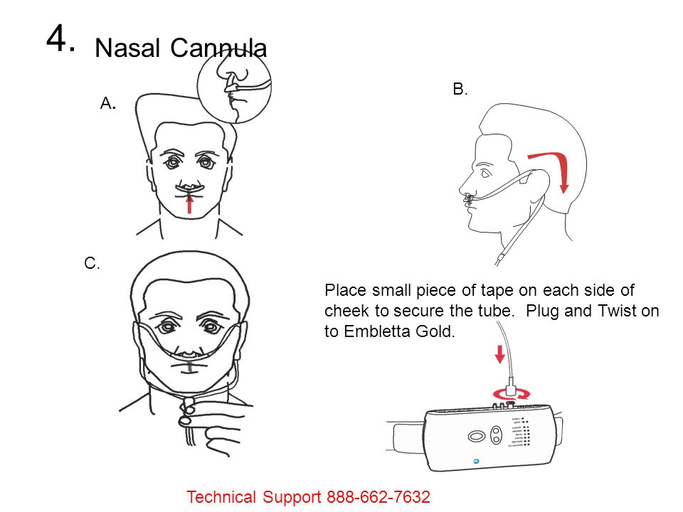 4. Nasal Cannula. A. B. C. Place small piece of tape on each side of cheek to secure the tube. Plug and Twist on to Embletta Gold.