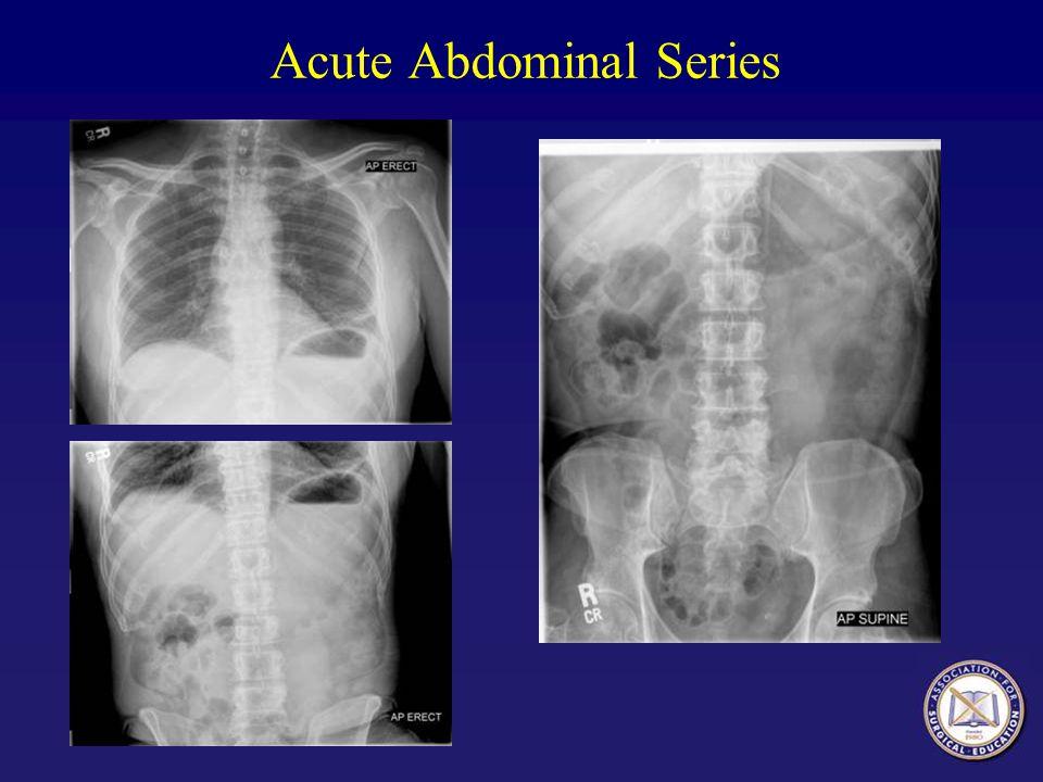 Acute Abdominal Series