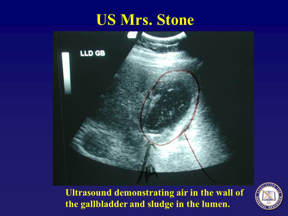 US Mrs. Stone Ultrasound demonstrating air in the wall of the gallbladder and sludge in the lumen.