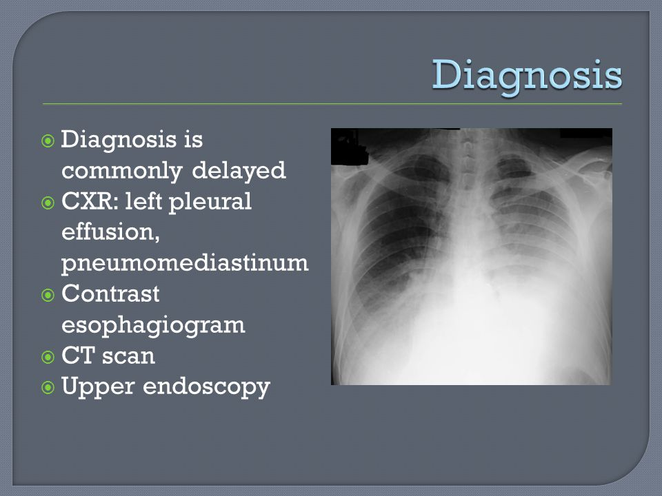 Diagnosis Diagnosis is commonly delayed