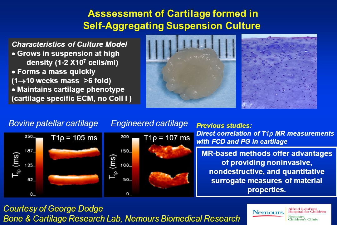 Asssessment of Cartilage formed in Self-Aggregating Suspension Culture