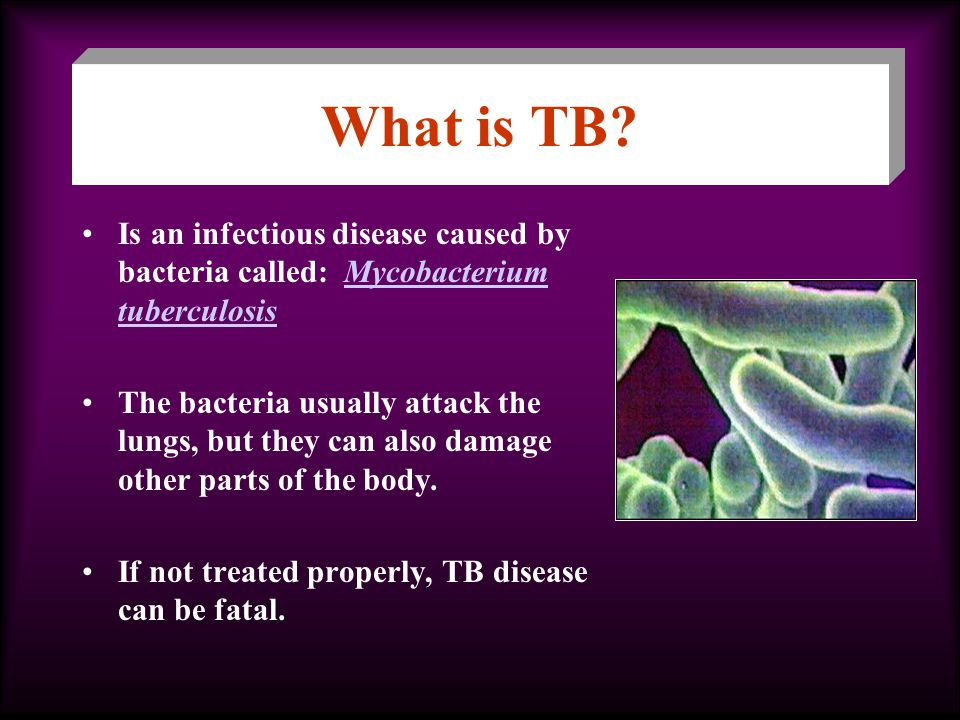 What is TB Is an infectious disease caused by bacteria called: Mycobacterium tuberculosis.