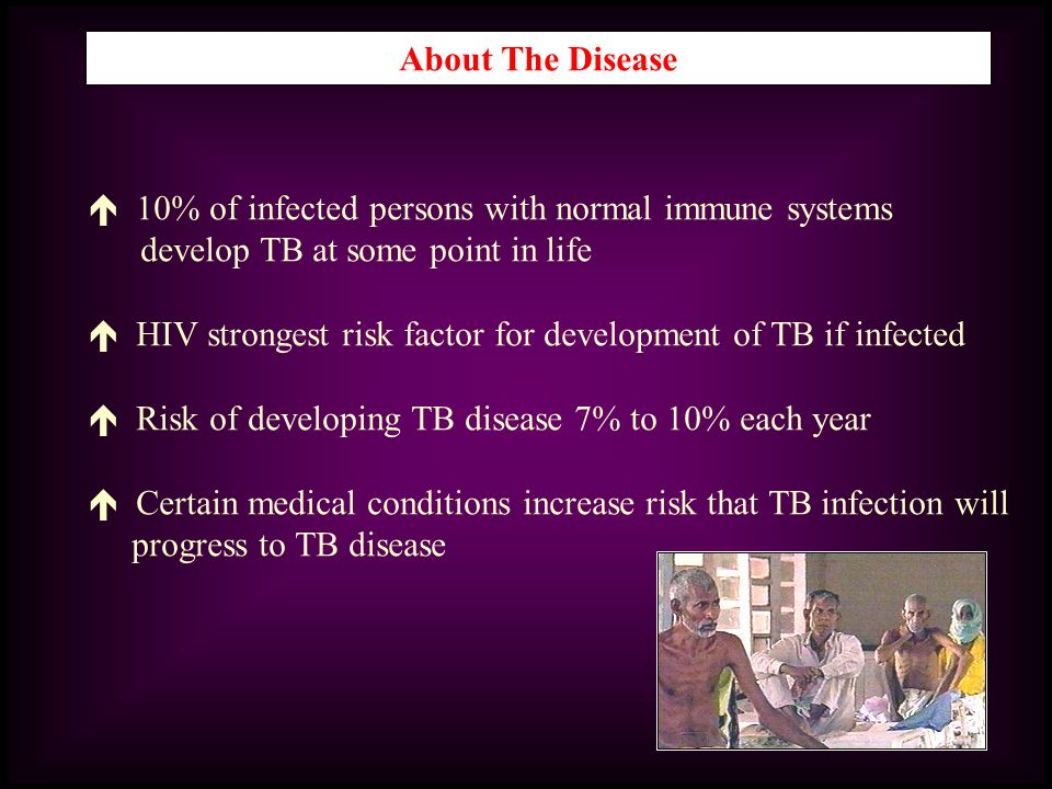 About The Disease  10% of infected persons with normal immune systems. develop TB at some point in life.