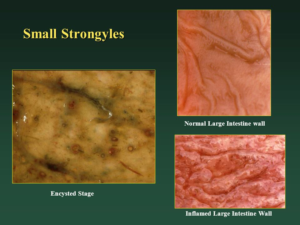 Normal Large Intestine wall Inflamed Large Intestine Wall