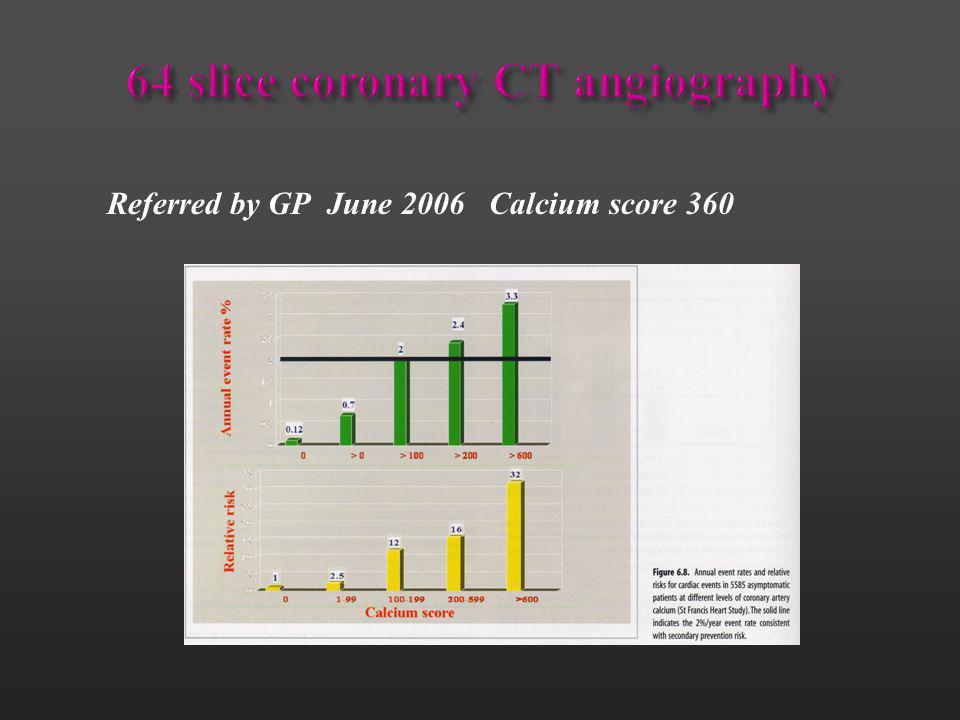 64 slice coronary CT angiography
