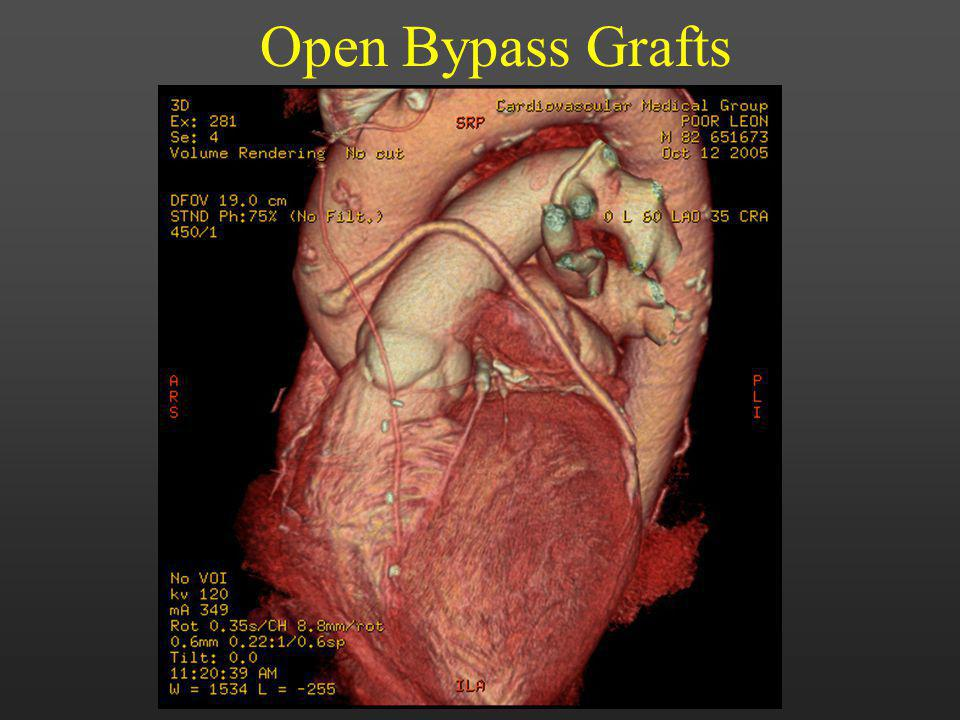 Open Bypass Grafts 40