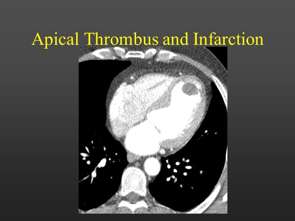 Apical Thrombus and Infarction