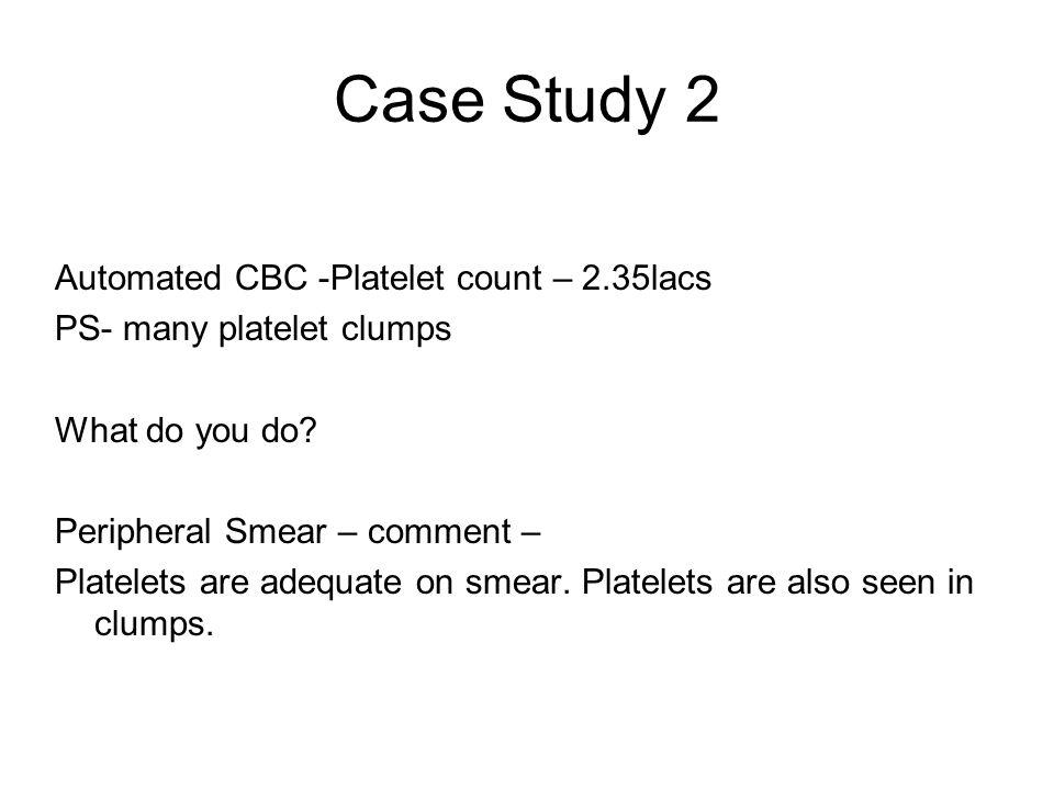 Case Study 2 Automated CBC -Platelet count – 2.35lacs