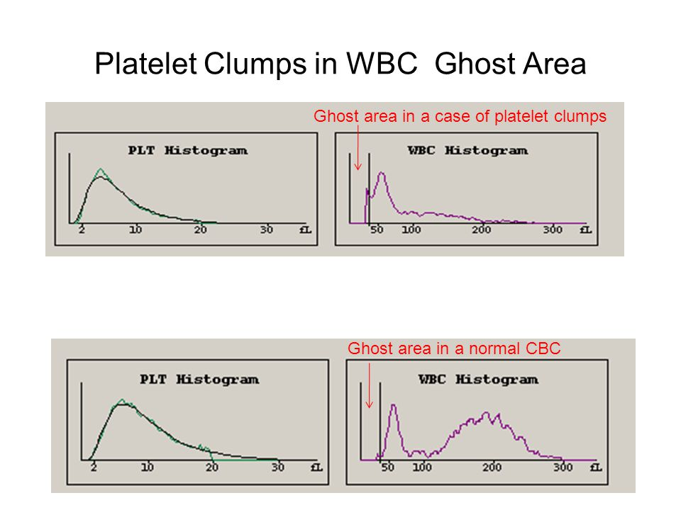 Platelet Clumps in WBC Ghost Area