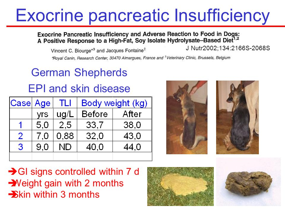 Exocrine pancreatic Insufficiency