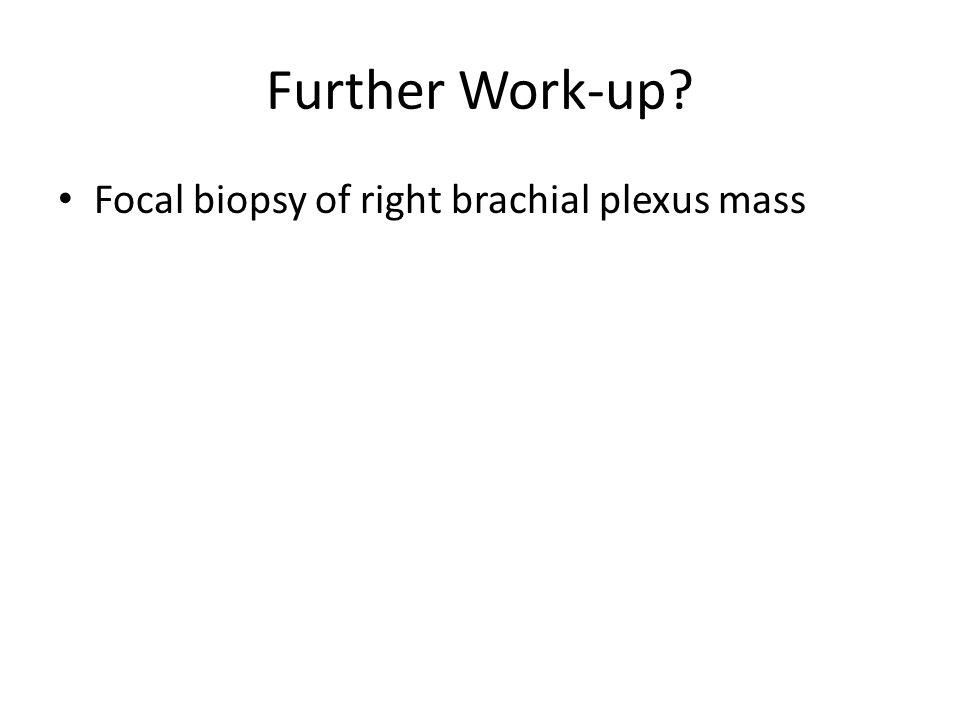Further Work-up Focal biopsy of right brachial plexus mass