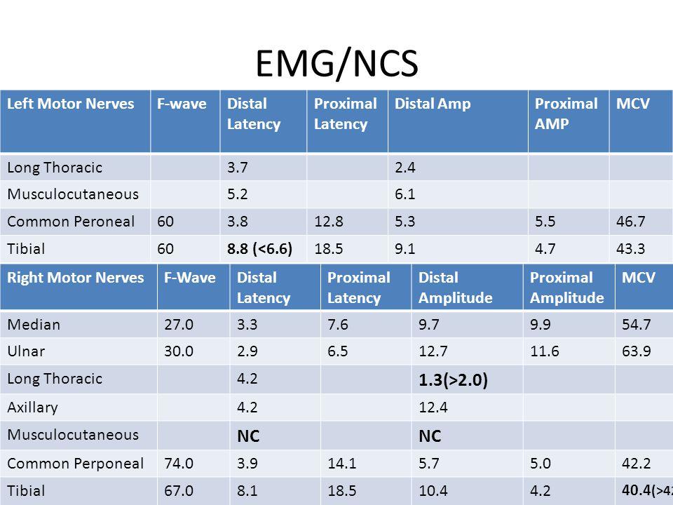 EMG/NCS 1.3(>2.0) NC Left Motor Nerves F-wave Distal Latency