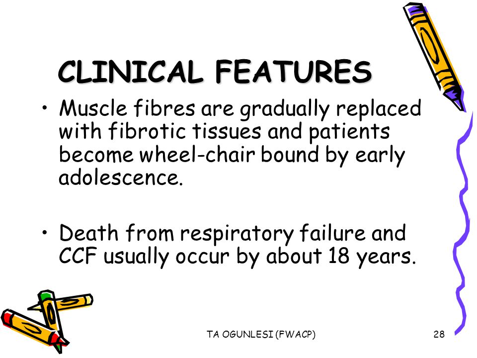 CLINICAL FEATURES Muscle fibres are gradually replaced with fibrotic tissues and patients become wheel-chair bound by early adolescence.