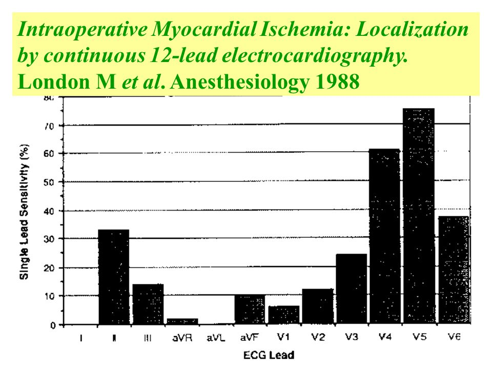 Intraoperative Myocardial Ischemia: Localization by continuous 12-lead electrocardiography. London M et al. Anesthesiology 1988