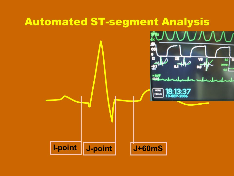 Automated ST-segment Analysis