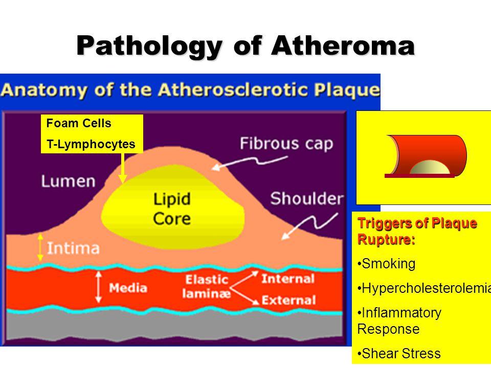Pathology of Atheroma Triggers of Plaque Rupture: Smoking