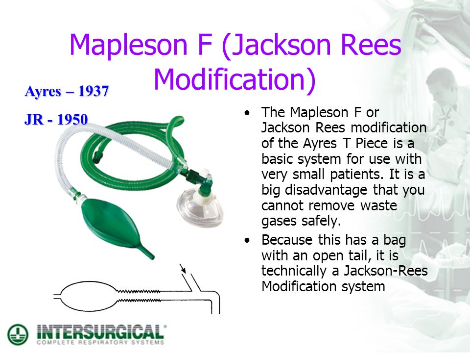 Mapleson F (Jackson Rees Modification)