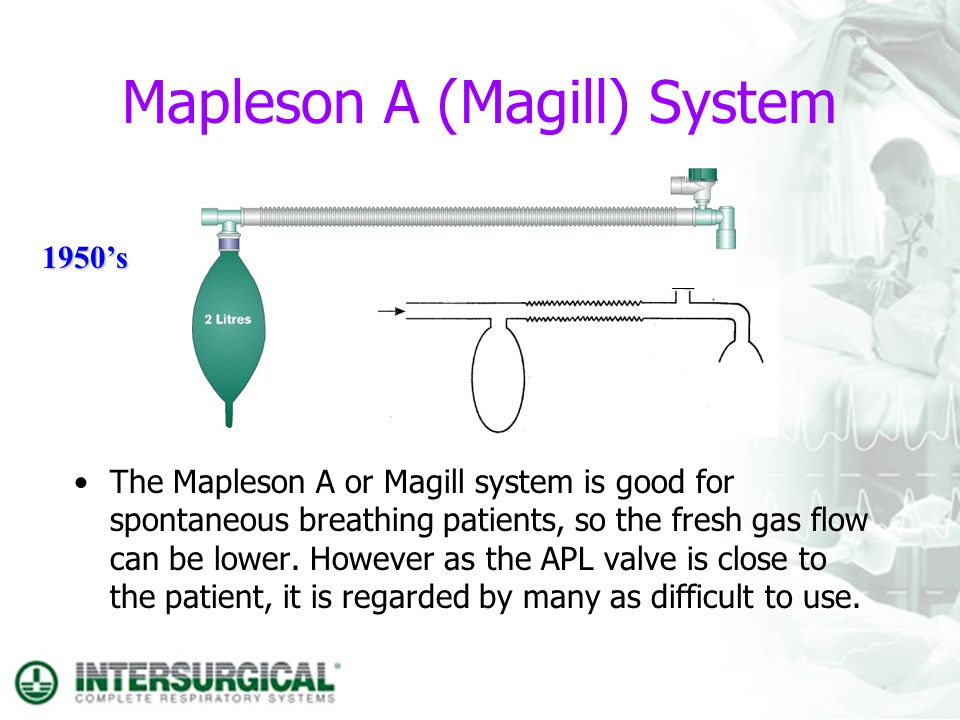 Mapleson A (Magill) System