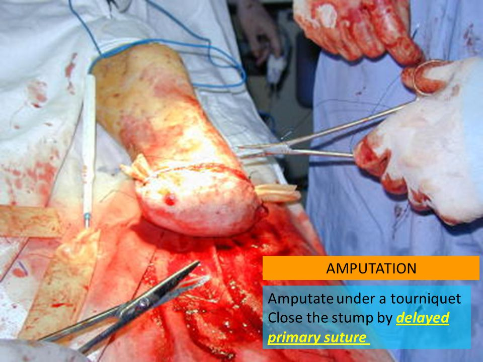 AMPUTATION Amputate under a tourniquet Close the stump by delayed primary suture