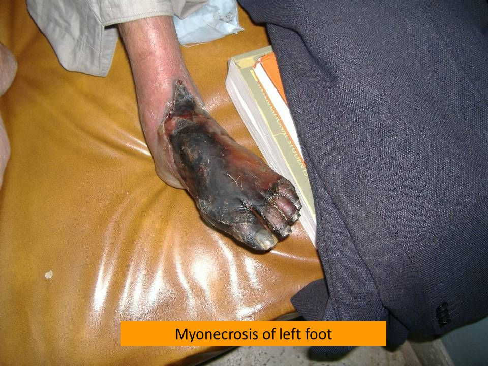 Myonecrosis of left foot