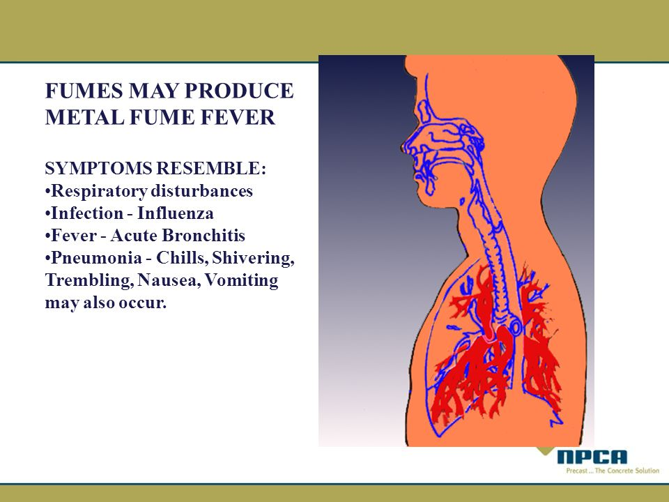 FUMES MAY PRODUCE METAL FUME FEVER SYMPTOMS RESEMBLE: