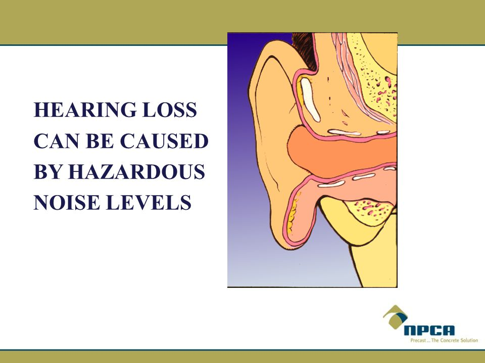 HEARING LOSS CAN BE CAUSED BY HAZARDOUS NOISE LEVELS