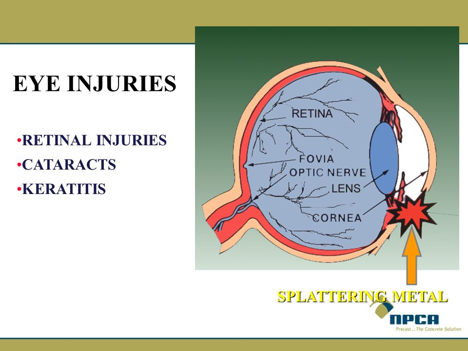EYE INJURIES RETINAL INJURIES CATARACTS KERATITIS SPLATTERING METAL