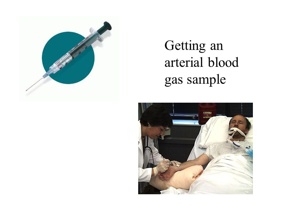 Getting an arterial blood gas sample