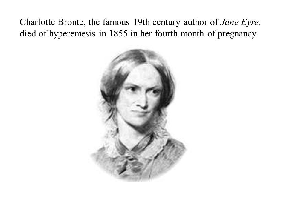 Charlotte Bronte, the famous 19th century author of Jane Eyre, died of hyperemesis in 1855 in her fourth month of pregnancy.