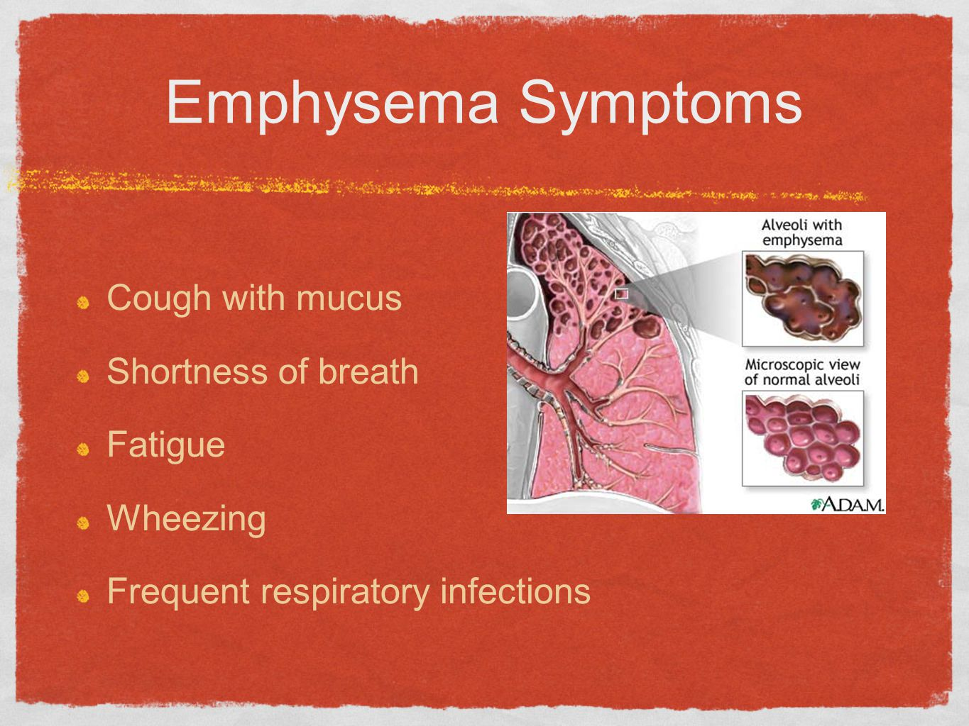 Emphysema Symptoms Cough with mucus Shortness of breath Fatigue
