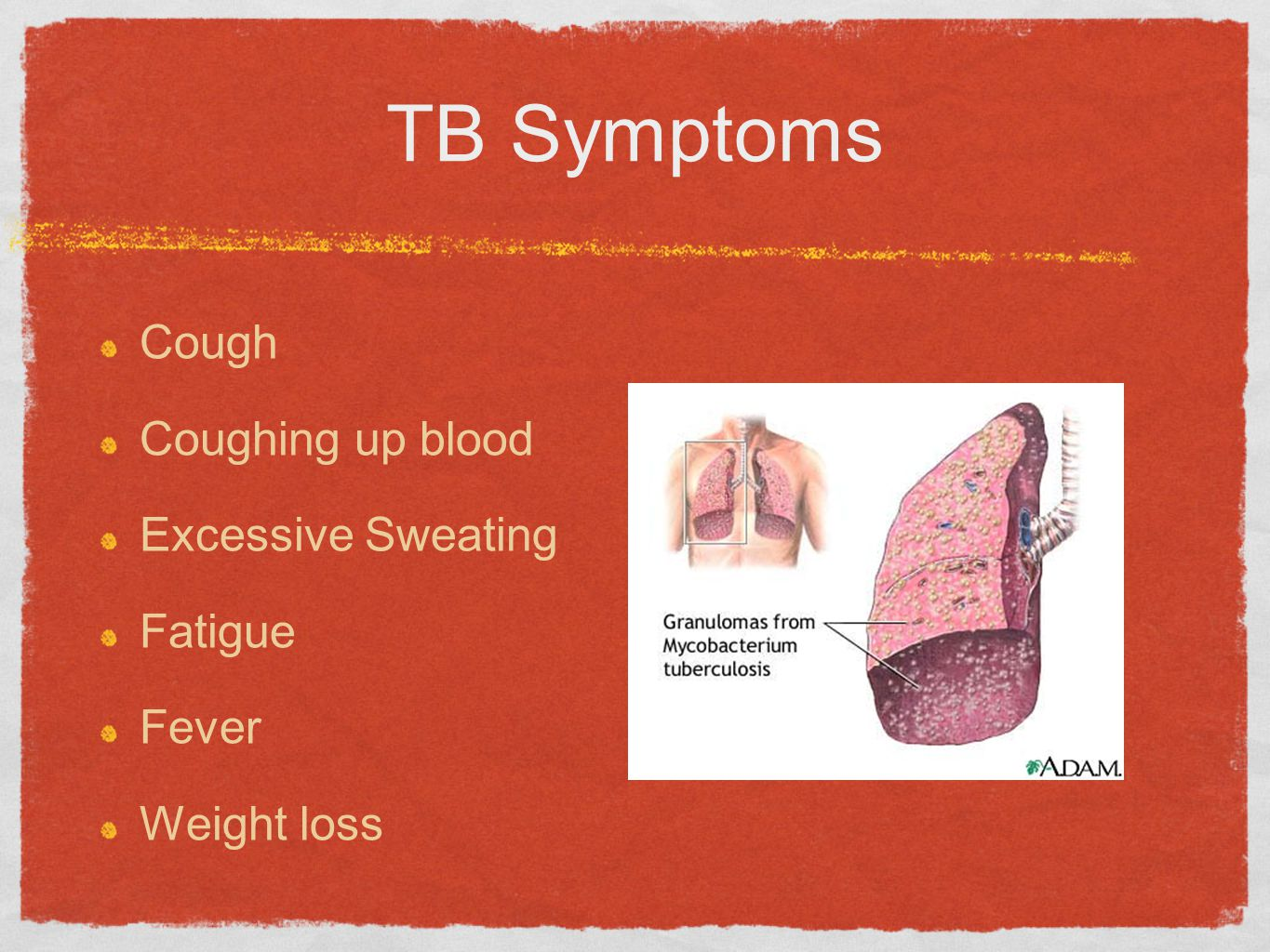 TB Symptoms Cough Coughing up blood Excessive Sweating Fatigue Fever