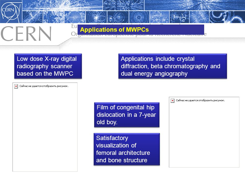 Applications of MWPCs Low dose X-ray digital radiography scanner based on the MWPC.